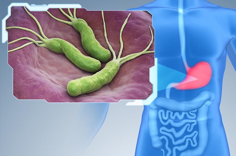 胃の粘膜に棲む細菌